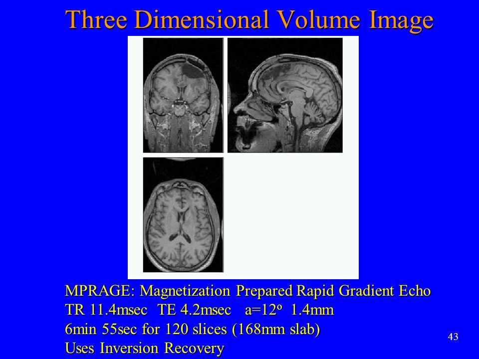43 MPRAGE: Magnetization Prepared Rapid Gradient Echo TR 11.4msec TE 4.2msec a=12 o 1.4mm 6min 55sec for 120 slices (168mm slab) Uses Inversion Recove