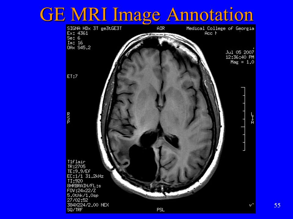 55 GE MRI Image Annotation