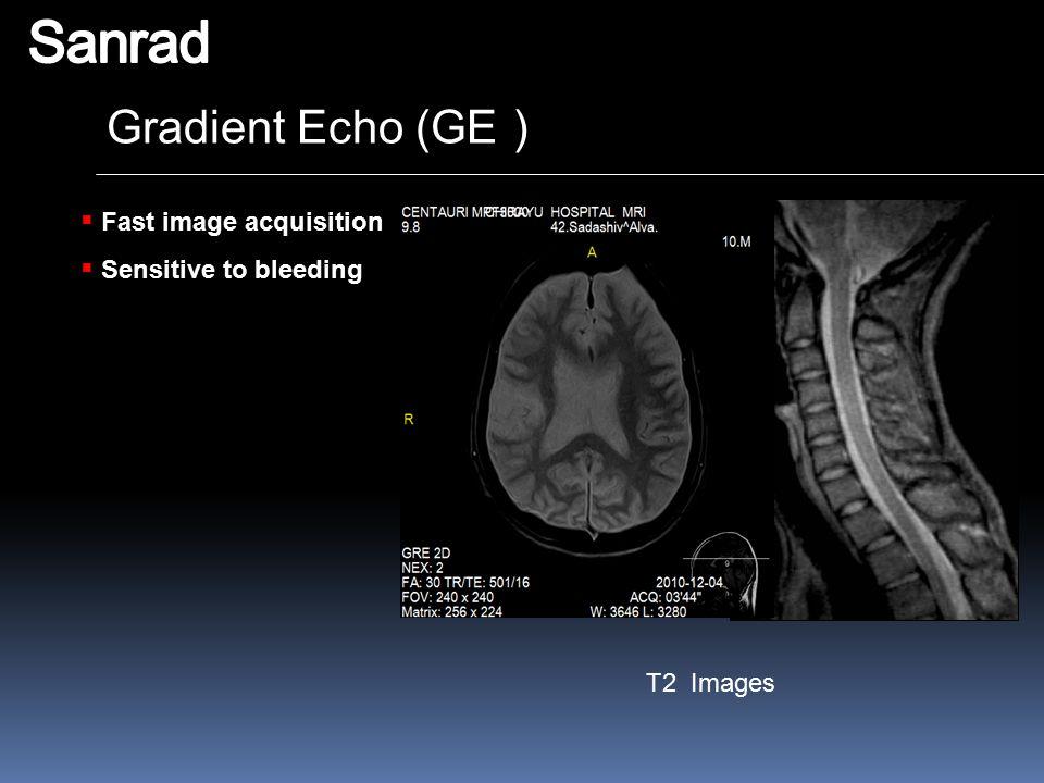 Gradient Echo (GE )  Fast image acquisition  Sensitive to bleeding T2 Images