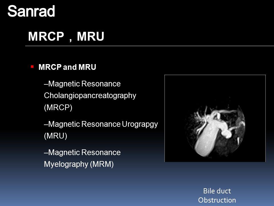 MRCP , MRU Bile duct Obstruction  MRCP and MRU –Magnetic Resonance Cholangiopancreatography (MRCP) –Magnetic Resonance Urograpgy (MRU) –Magnetic Reso
