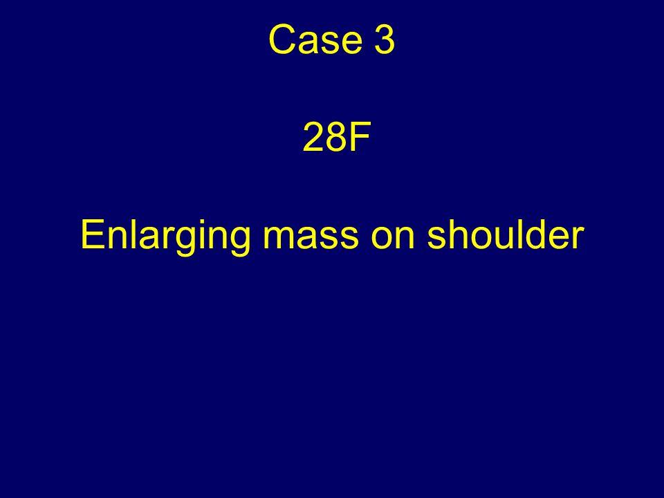 Case 3 28F Enlarging mass on shoulder