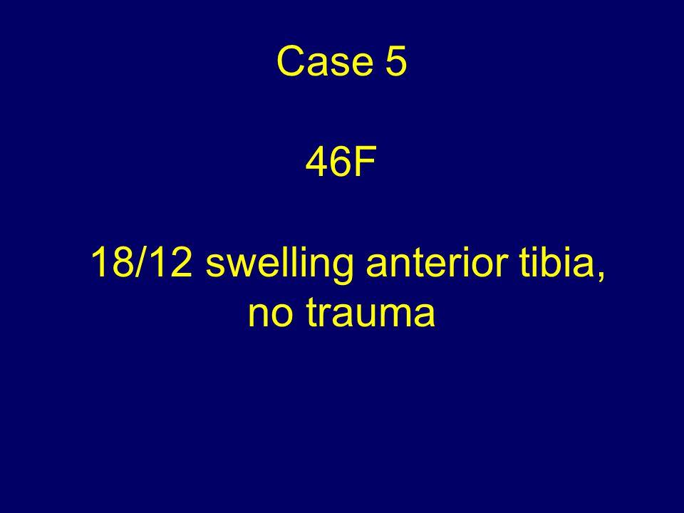Case 5 46F 18/12 swelling anterior tibia, no trauma