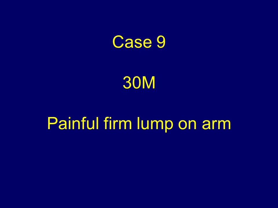Case 9 30M Painful firm lump on arm