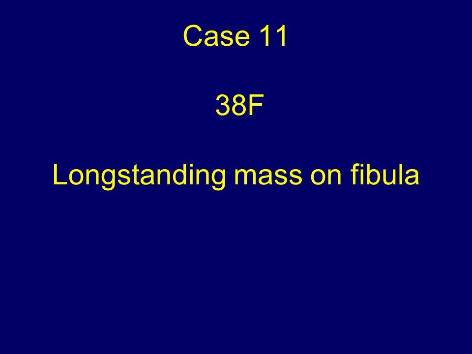 Case 11 38F Longstanding mass on fibula