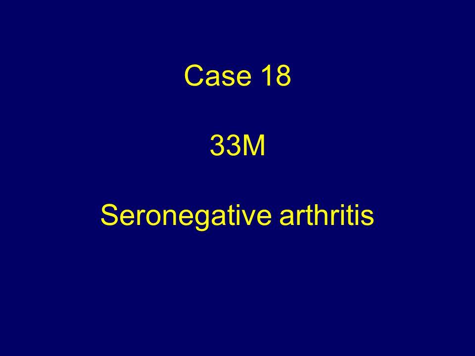 Case 18 33M Seronegative arthritis