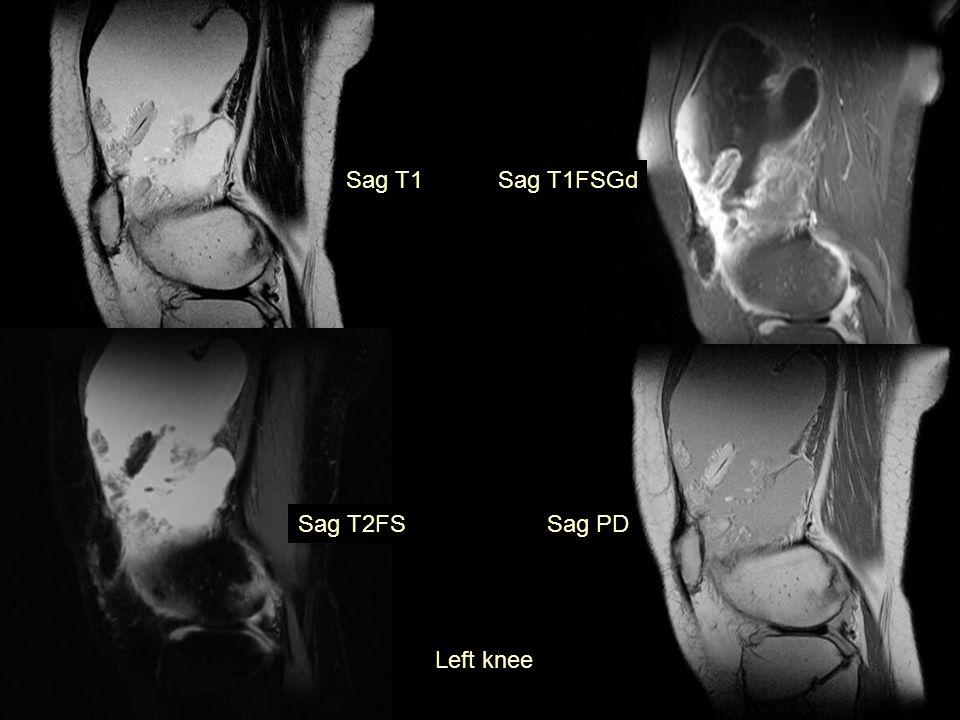 Sag T1 Left knee Sag T1FSGd Sag PDSag T2FS