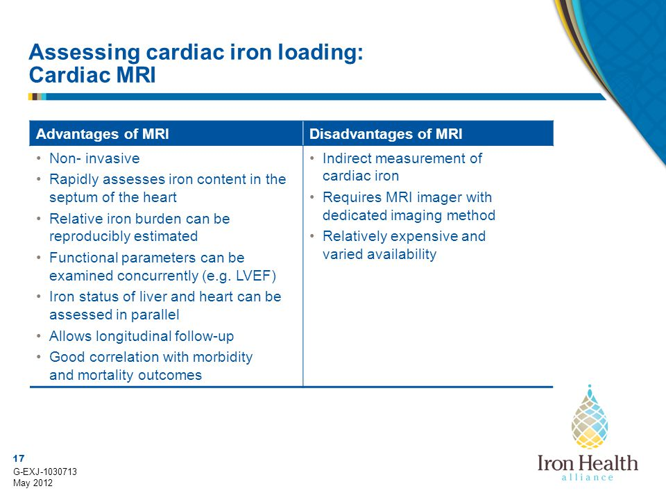 17 G-EXJ-1030713 May 2012 Assessing cardiac iron loading: Cardiac MRI Advantages of MRIDisadvantages of MRI Non- invasive Rapidly assesses iron conten