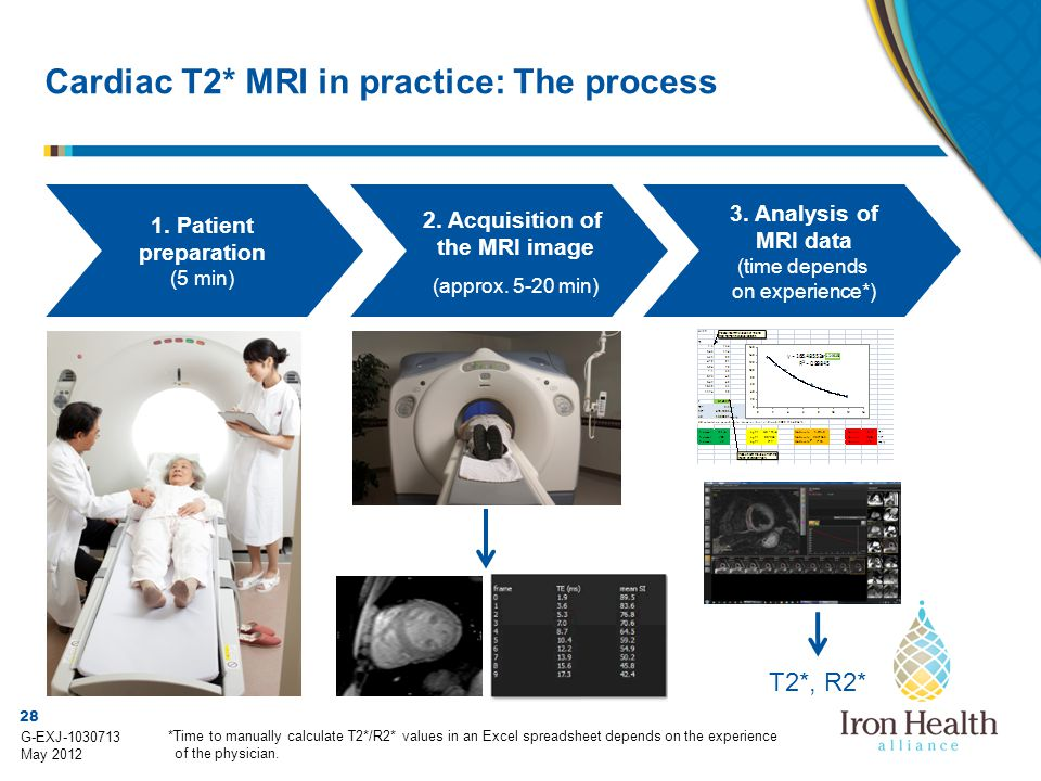 28 G-EXJ-1030713 May 2012 Cardiac T2* MRI in practice: The process T2*, R2* *Time to manually calculate T2*/R2* values in an Excel spreadsheet depends