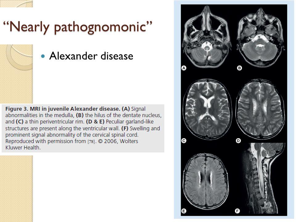 """Nearly pathognomonic"" Alexander disease"