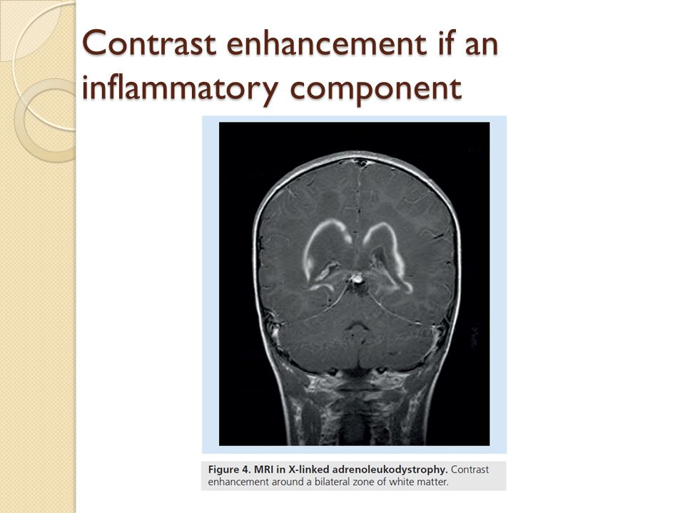 Contrast enhancement if an inflammatory component