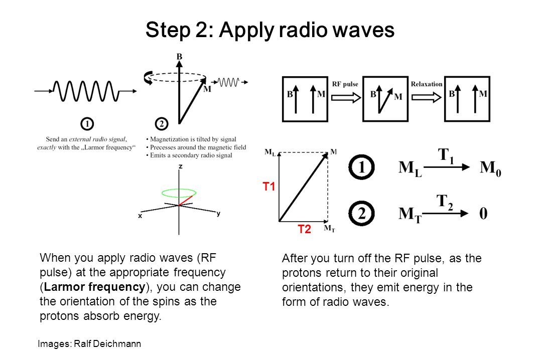 Images: Ralf Deichmann Step 2: Apply radio waves When you apply radio waves (RF pulse) at the appropriate frequency (Larmor frequency), you can change the orientation of the spins as the protons absorb energy.