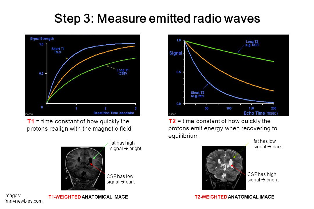 Step 3: Measure emitted radio waves T1 = time constant of how quickly the protons realign with the magnetic field T2 = time constant of how quickly the protons emit energy when recovering to equilibrium fat has high signal  bright CSF has low signal  dark T1-WEIGHTED ANATOMICAL IMAGE T2-WEIGHTED ANATOMICAL IMAGE fat has low signal  dark CSF has high signal  bright Images: fmri4newbies.com