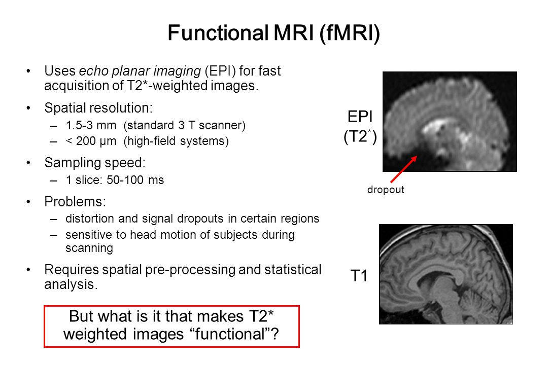 Functional MRI (fMRI) Uses echo planar imaging (EPI) for fast acquisition of T2*-weighted images.