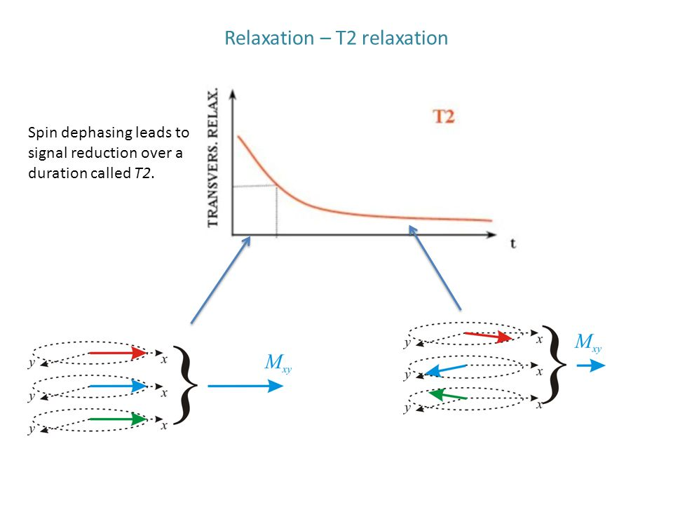 Relaxation – T2 relaxation Spin dephasing leads to signal reduction over a duration called T2.