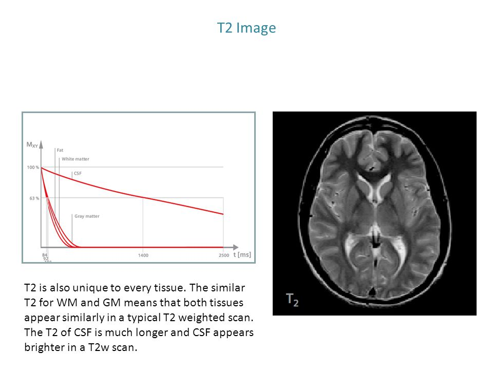 T2 is also unique to every tissue. The similar T2 for WM and GM means that both tissues appear similarly in a typical T2 weighted scan. The T2 of CSF