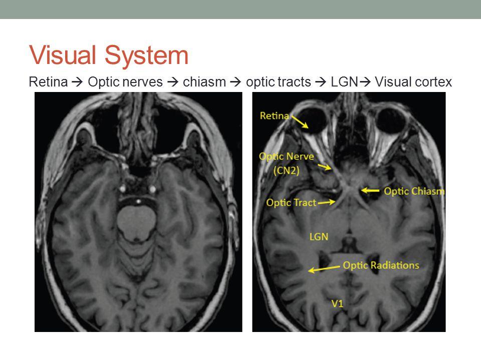 Visual System Retina  Optic nerves  chiasm  optic tracts  LGN  Visual cortex