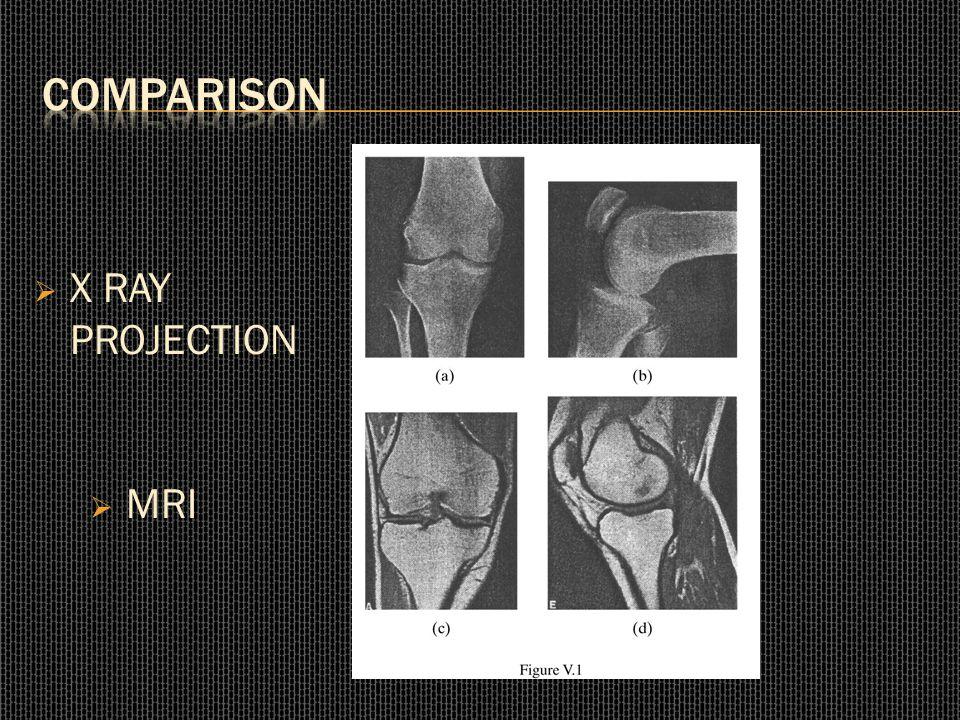  X RAY PROJECTION  MRI