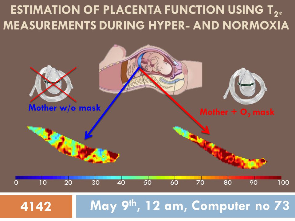 ESTIMATION OF PLACENTA FUNCTION USING T 2* MEASUREMENTS DURING HYPER- AND NORMOXIA May 9 th, 12 am, Computer no 73 Mother + O 2 mask Mother w/o mask 4142 0102030100405060708090