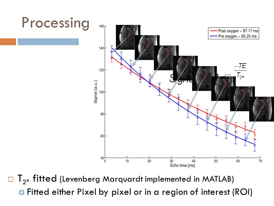 Processing  T 2* fitted (Levenberg Marquardt implemented in MATLAB)  Fitted either Pixel by pixel or in a region of interest (ROI)