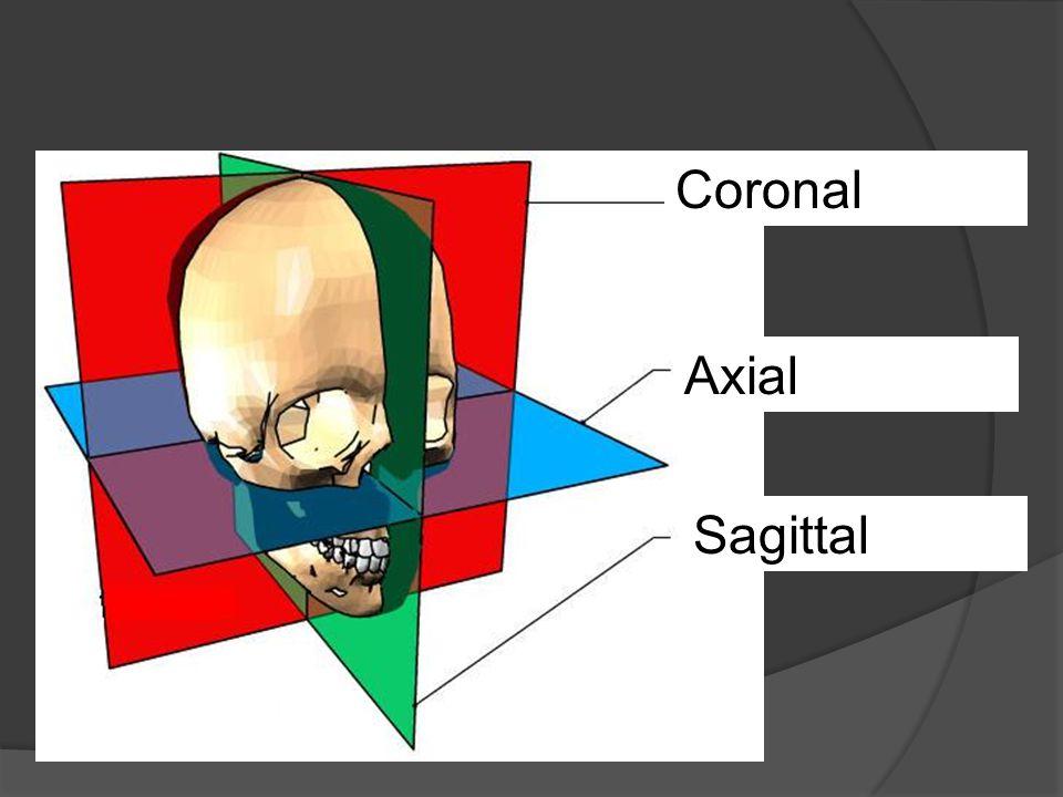 Coronal Axial Sagittal