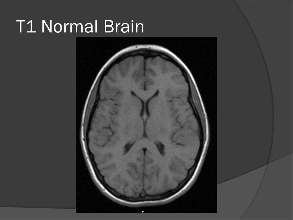 T1 Normal Brain