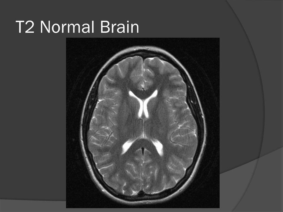 T2 Normal Brain