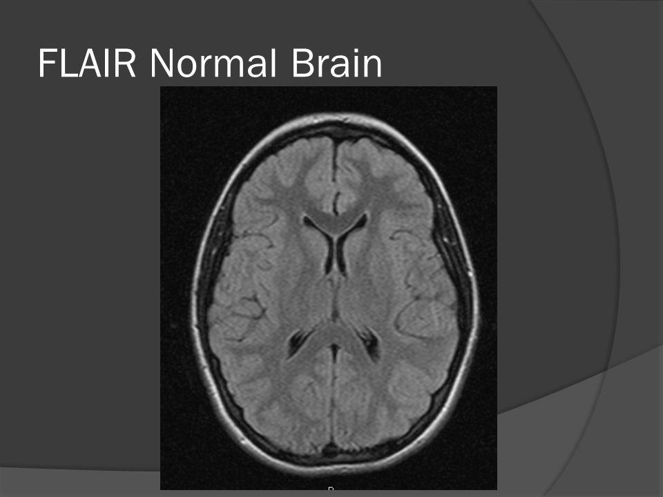 FLAIR Normal Brain