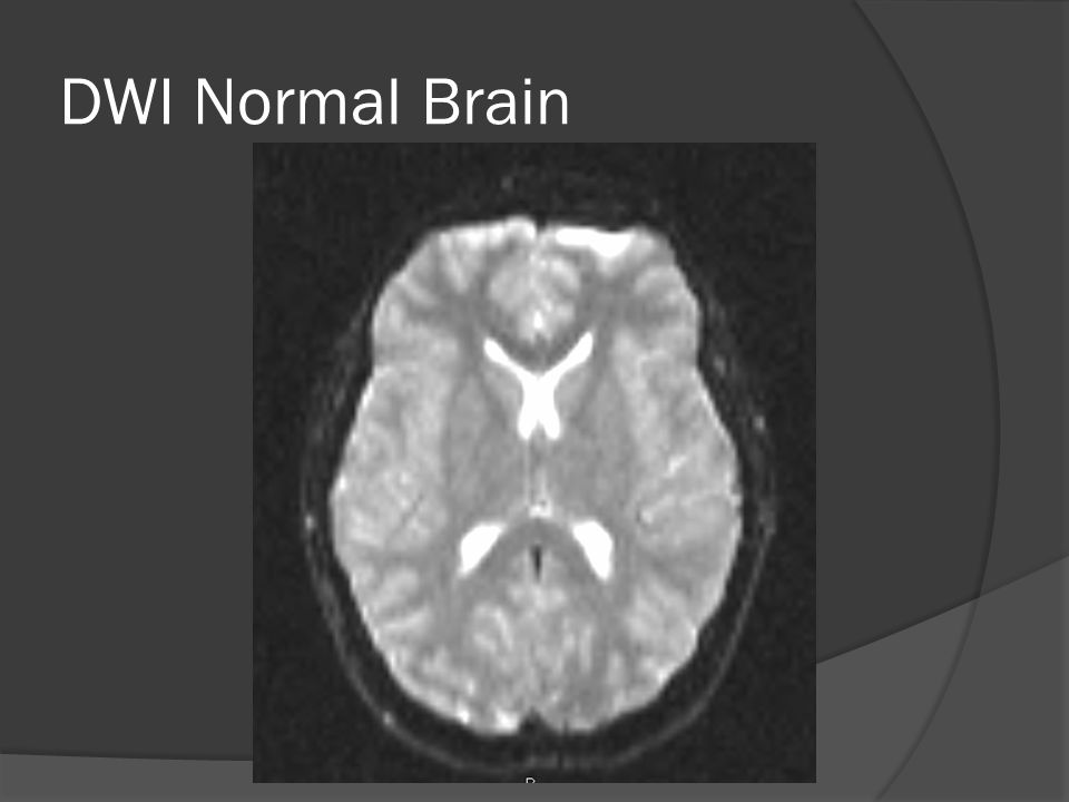 DWI Normal Brain