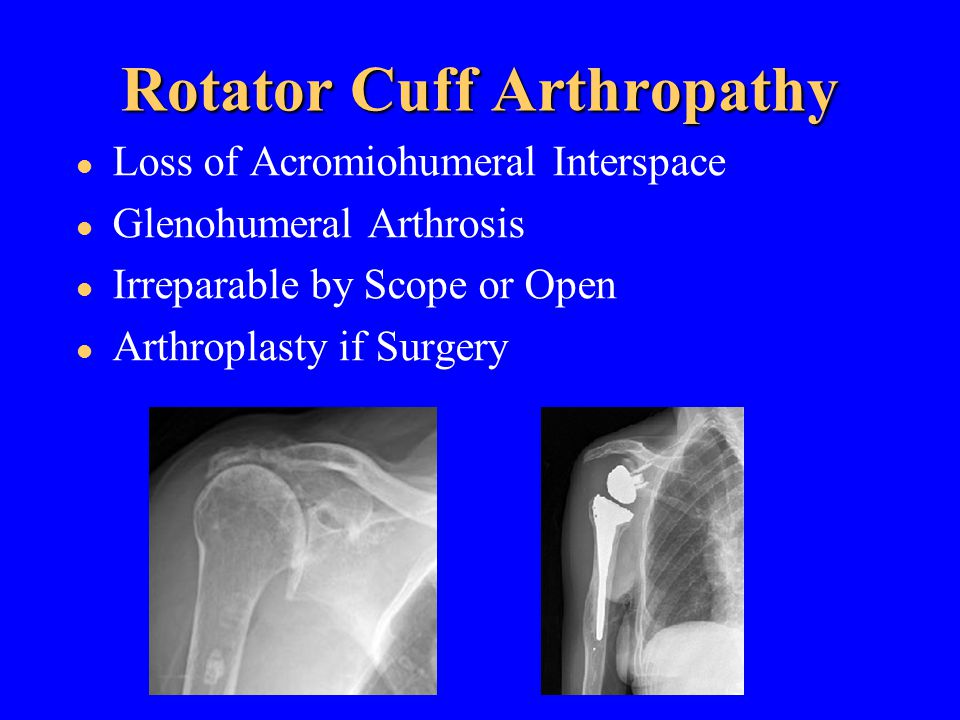 Rotator Cuff Arthropathy Loss of Acromiohumeral Interspace Glenohumeral Arthrosis Irreparable by Scope or Open Arthroplasty if Surgery