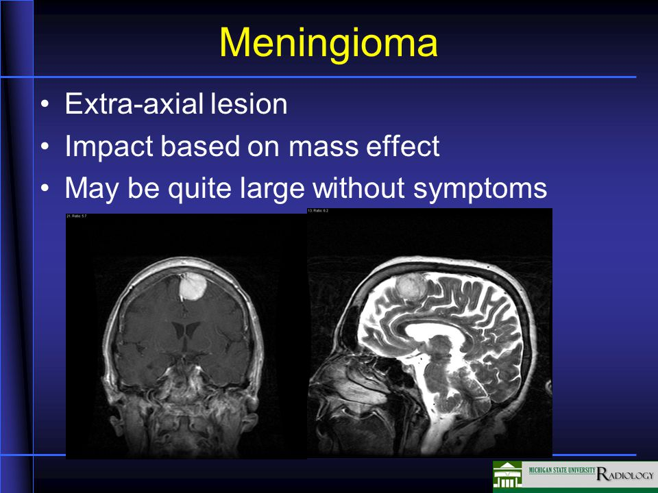Meningioma Extra-axial lesion Impact based on mass effect May be quite large without symptoms