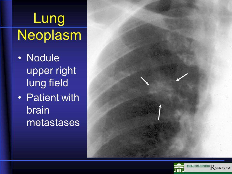 Lung Neoplasm Nodule upper right lung field Patient with brain metastases