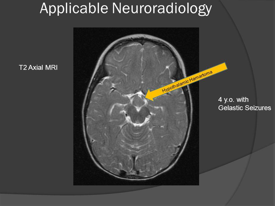 Applicable Neuroradiology T2 Axial MRI Hypothalamic Hamartoma 4 y.o. with Gelastic Seizures