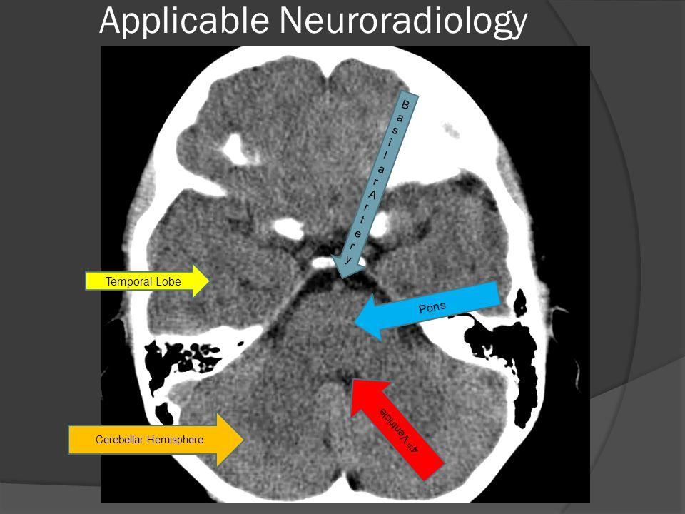 Temporal Lobe Cerebellar Hemisphere 4 th Ventricle Pons BasilarArteryBasilarArtery
