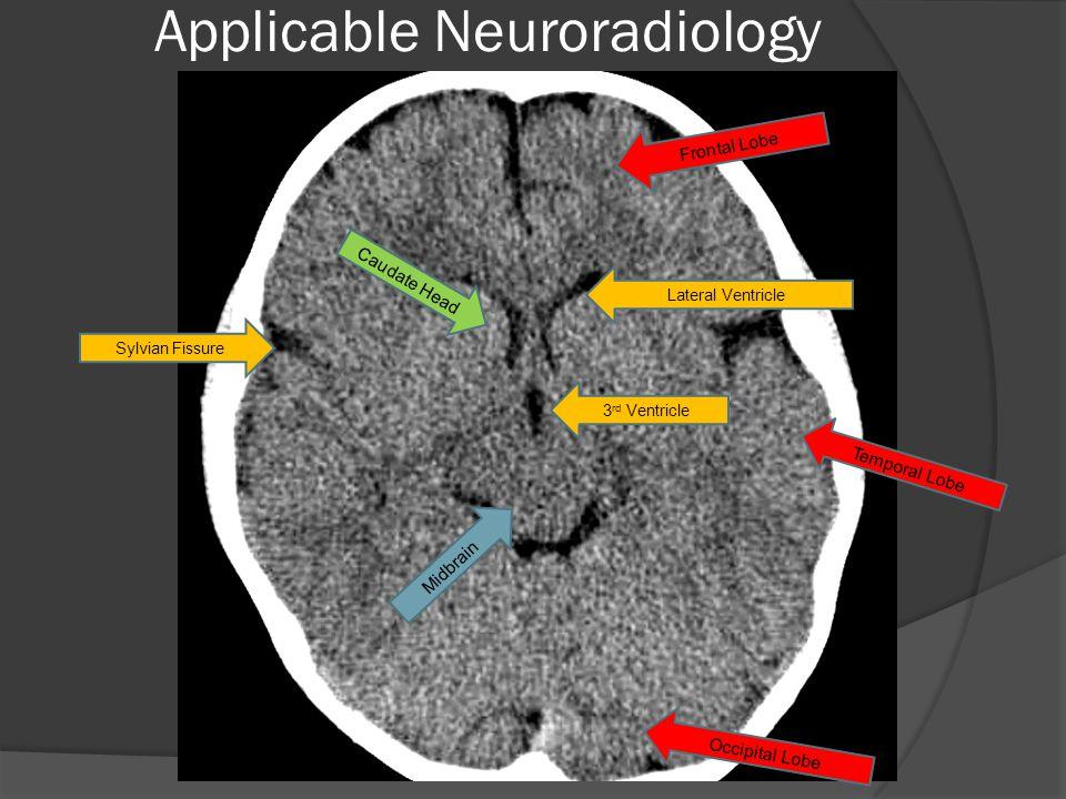 Sylvian Fissure Temporal Lobe Midbrain 3 rd Ventricle Caudate Head Lateral Ventricle Frontal Lobe Occipital Lobe