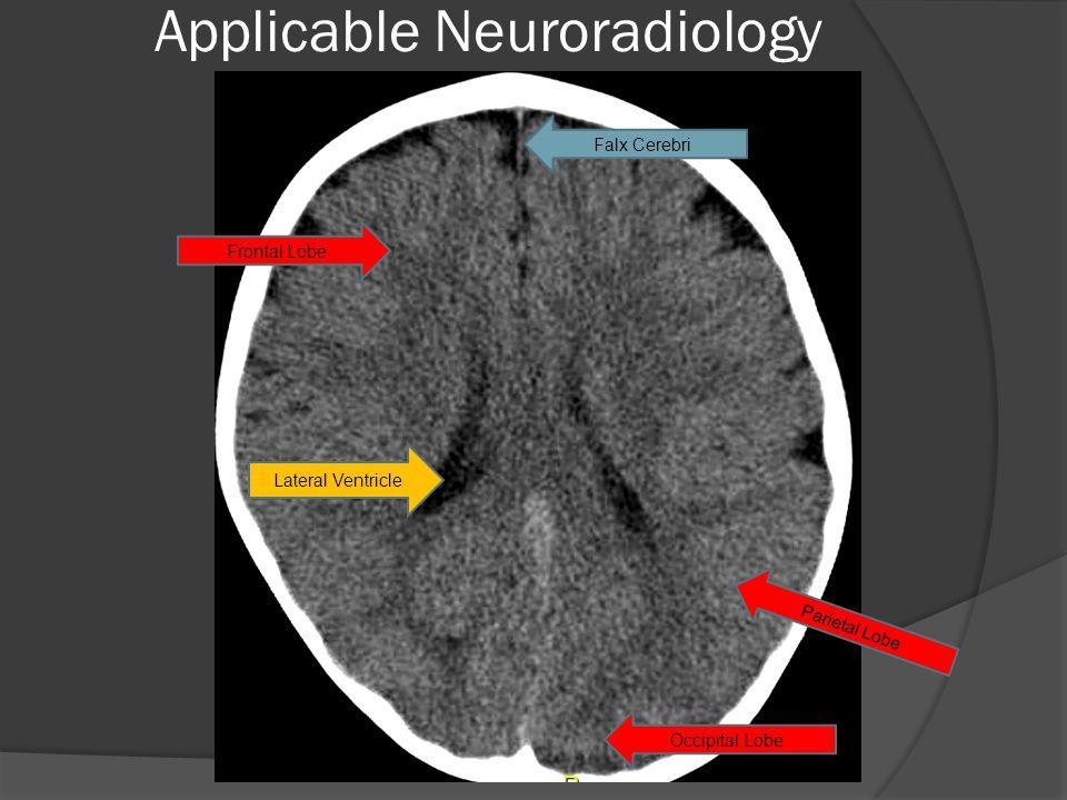 Lateral Ventricle Falx Cerebri Frontal Lobe Occipital Lobe Parietal Lobe