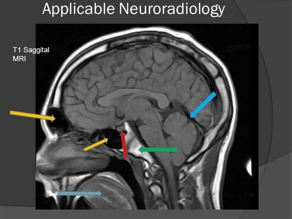 Applicable Neuroradiology T1 Saggital MRI