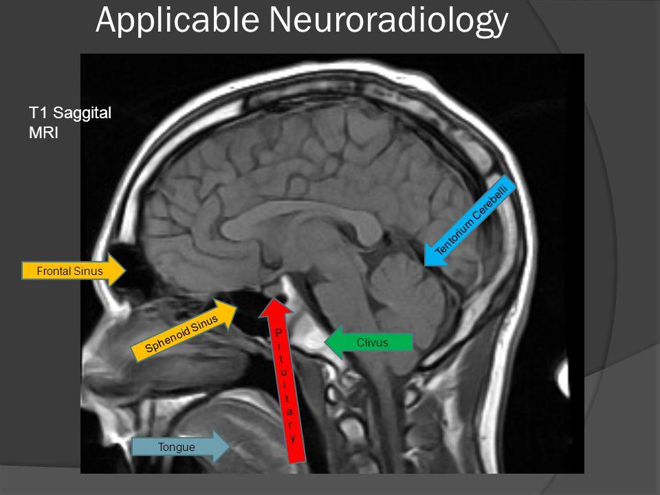 Applicable Neuroradiology Frontal Sinus Sphenoid Sinus PituitaryPituitary Clivus Tentorium Cerebelli Tongue T1 Saggital MRI