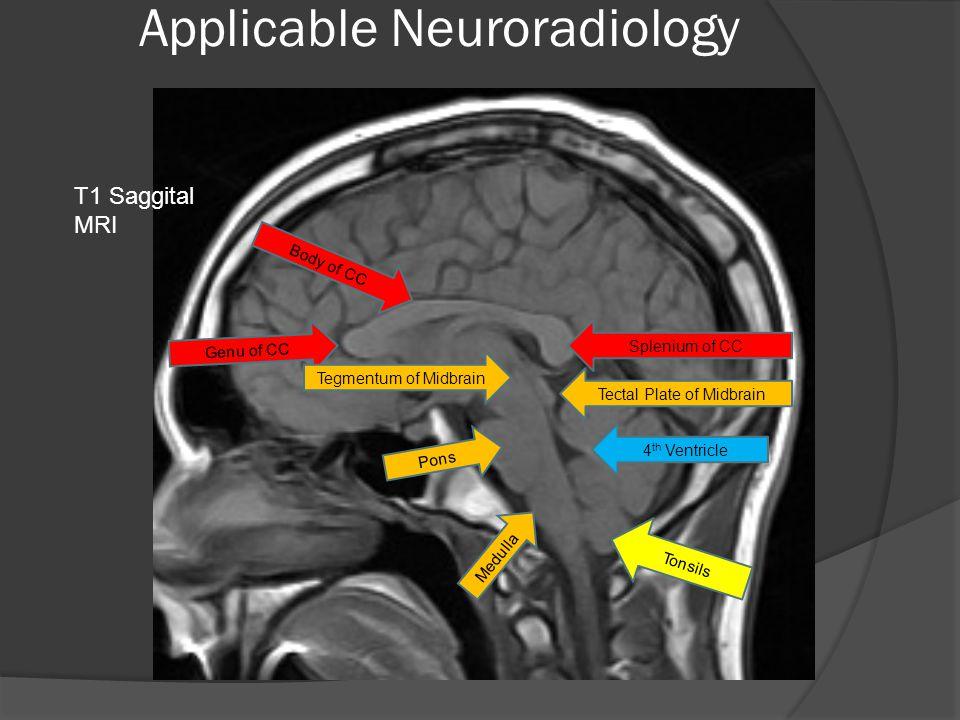Applicable Neuroradiology Genu of CC Body of CC Splenium of CC Tegmentum of Midbrain Tectal Plate of Midbrain Pons Medulla 4 th Ventricle Tonsils T1 Saggital MRI