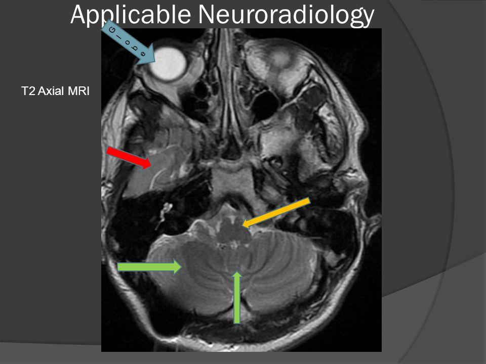 Applicable Neuroradiology T2 Axial MRI GlobeGlobe