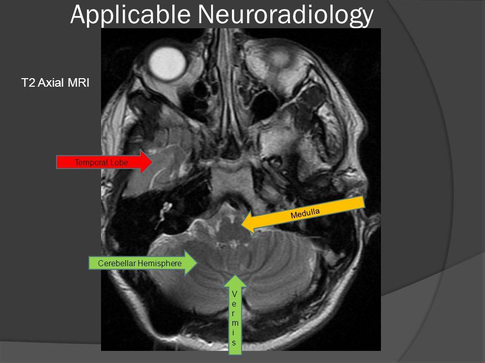 Applicable Neuroradiology Temporal Lobe Cerebellar Hemisphere VermisVermis Medulla T2 Axial MRI
