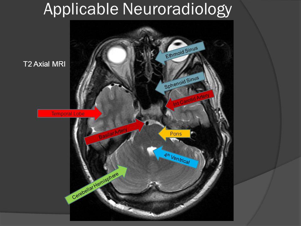 Applicable Neuroradiology Ethmoid Sinus Sphenoid Sinus Temporal Lobe Int Carotid Artery Basilar Artery Pons 4 th Ventrical Cerebellar Hemisphere T2 Axial MRI