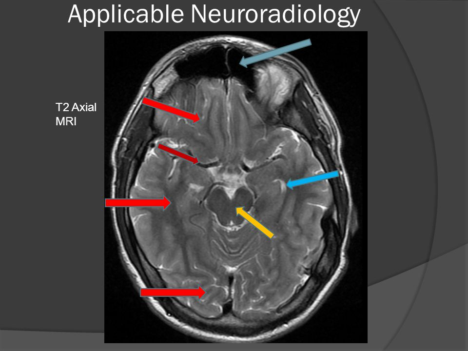 Applicable Neuroradiology T2 Axial MRI
