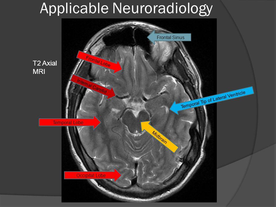 Applicable Neuroradiology Frontal Sinus Frontal Lobe Temporal Lobe Internal Carotid Temporal Tip of Lateral Ventricle Midbrain Occipital Lobe T2 Axial MRI