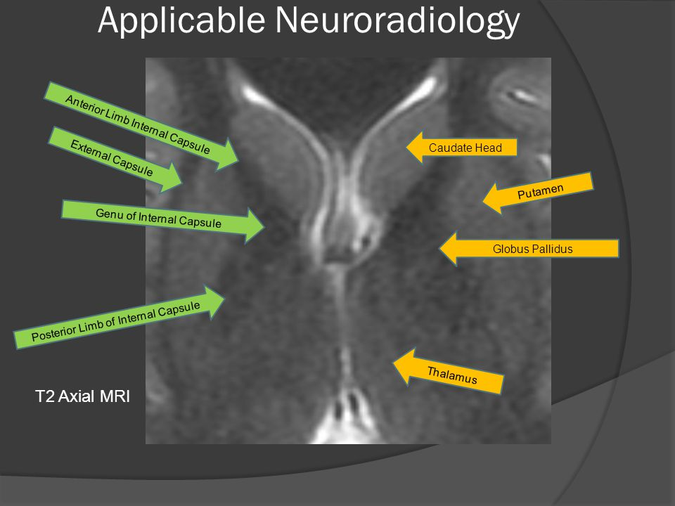 Applicable Neuroradiology Anterior Limb Internal Capsule External Capsule Genu of Internal Capsule Posterior Limb of Internal Capsule Caudate Head Putamen Globus Pallidus Thalamus T2 Axial MRI