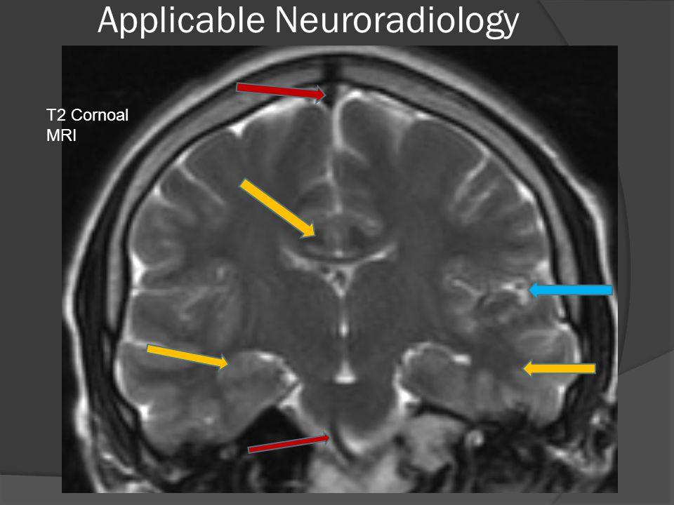 Applicable Neuroradiology T2 Cornoal MRI