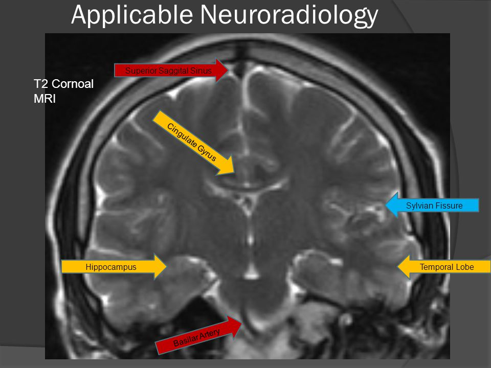 Applicable Neuroradiology T2 Cornoal MRI Cingulate Gyrus HippocampusTemporal Lobe Sylvian Fissure Superior Saggital Sinus Basilar Artery