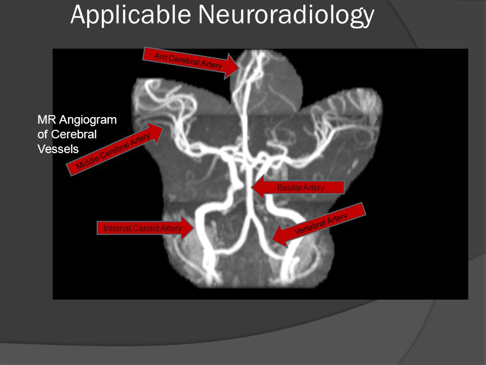 Applicable Neuroradiology MR Angiogram of Cerebral Vessels Internal Carotid Artery Middle Cerebral Artery Ant Cerebral Artery Vertebral Artery Basilar Artery