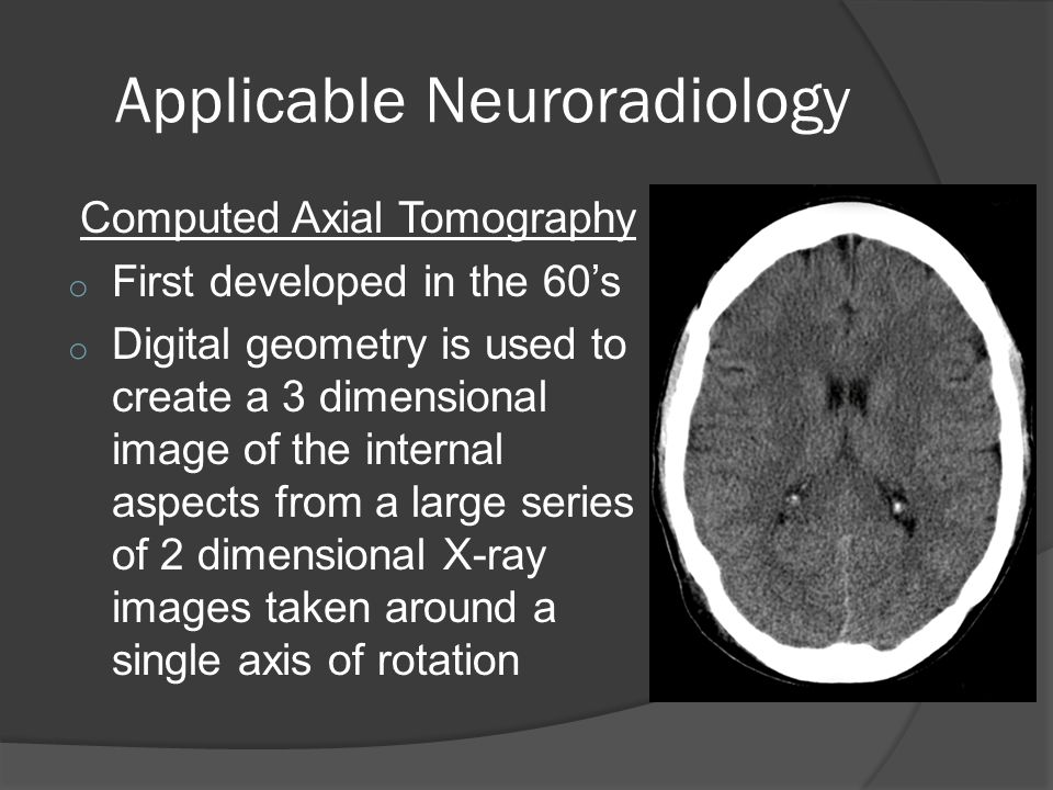 Applicable Neuroradiology Computed Axial Tomography o First developed in the 60's o Digital geometry is used to create a 3 dimensional image of the internal aspects from a large series of 2 dimensional X-ray images taken around a single axis of rotation