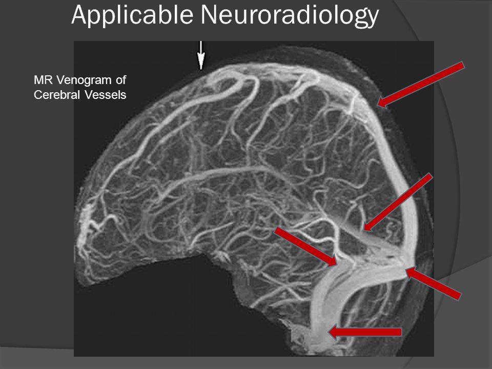 Applicable Neuroradiology MR Venogram of Cerebral Vessels