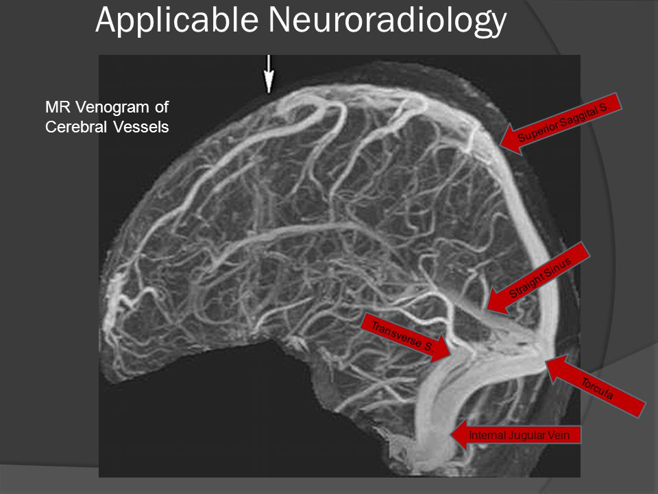 Applicable Neuroradiology MR Venogram of Cerebral Vessels Superior Saggital S.